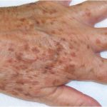 age-spots-on-hands