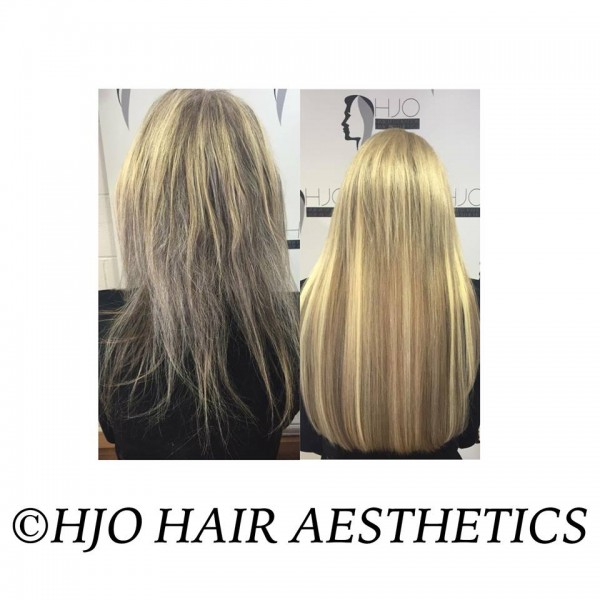 Hjo Hair Restoration